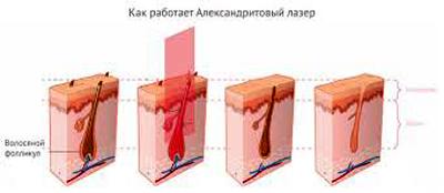 Как работает александритовый лазер