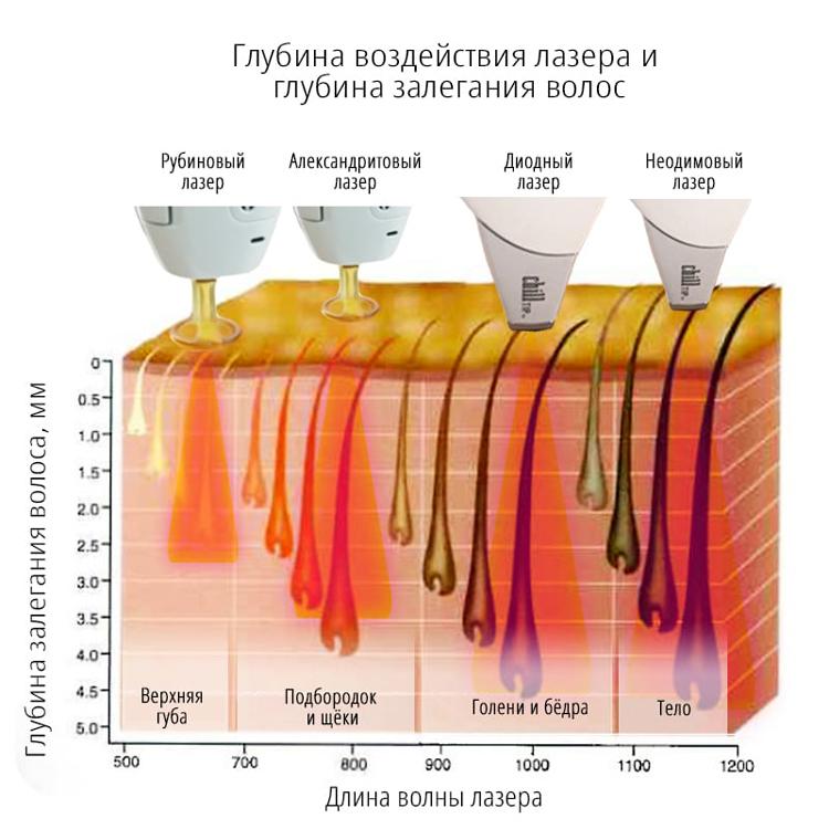 Глубина воздействия лазера