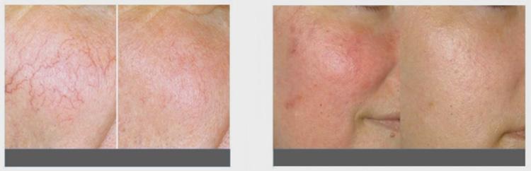 До и после лечения розацеа лазером