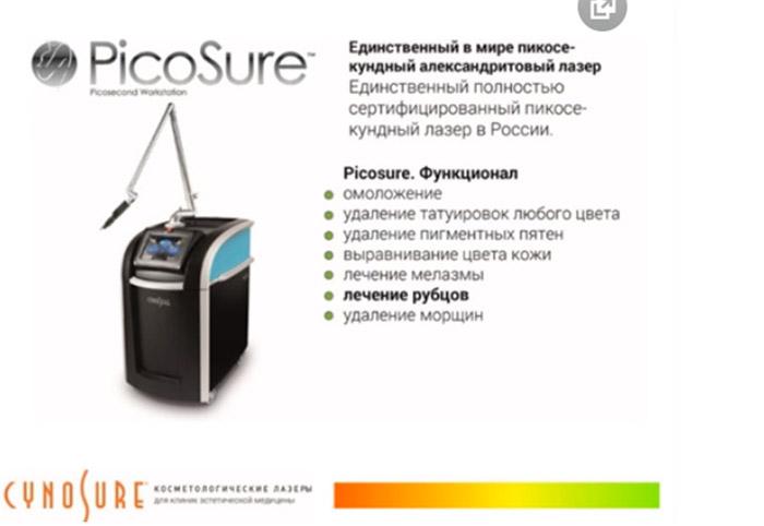 Лечить стриарные дефекты можно и с помощью единственного в мире пикосекундного александритового лазера PicoSure от компании Cynosure.