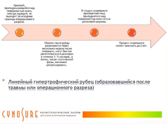 Рубец имеет в своем развитии несколько стадий