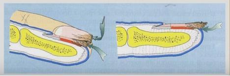 Дистально-латеральная форма онихомикоза
