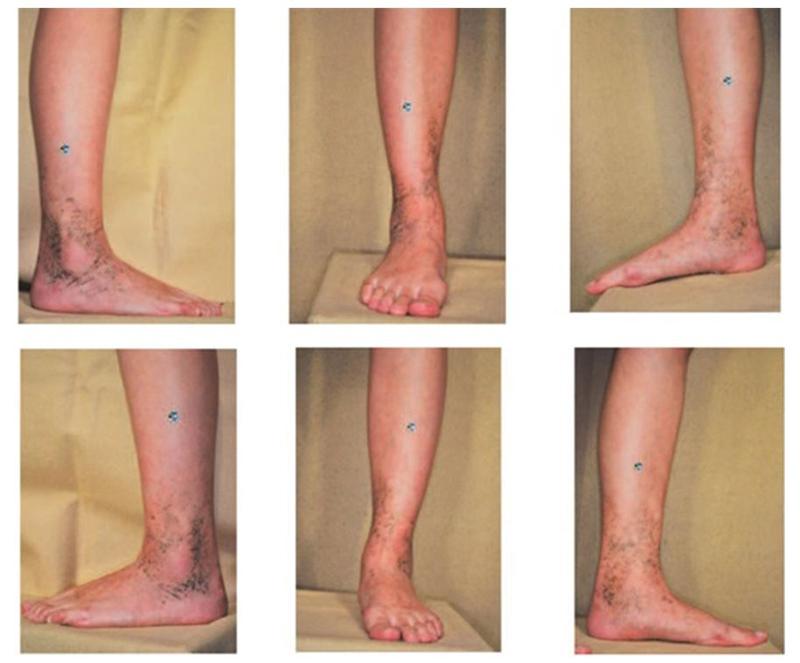 Вид серо-синей пигментации на правой (сверху) и левой (нижний ряд фотографий) голенях пациентки.