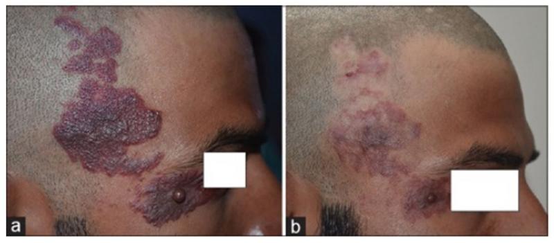 Винное пятно на правой стороне лица и волосистой части головы