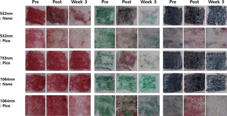 Рисунок 1. Фотографии с результатами удаления красных, зеленых и черных пигментов до начала лазеротерапии, сразу и спустя 3 недели после процедуры