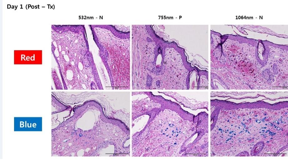 Рисунок 5. Образцы тканей, полученные в ходе биопсии. Окраска гематоксилином и эозином (H&E)