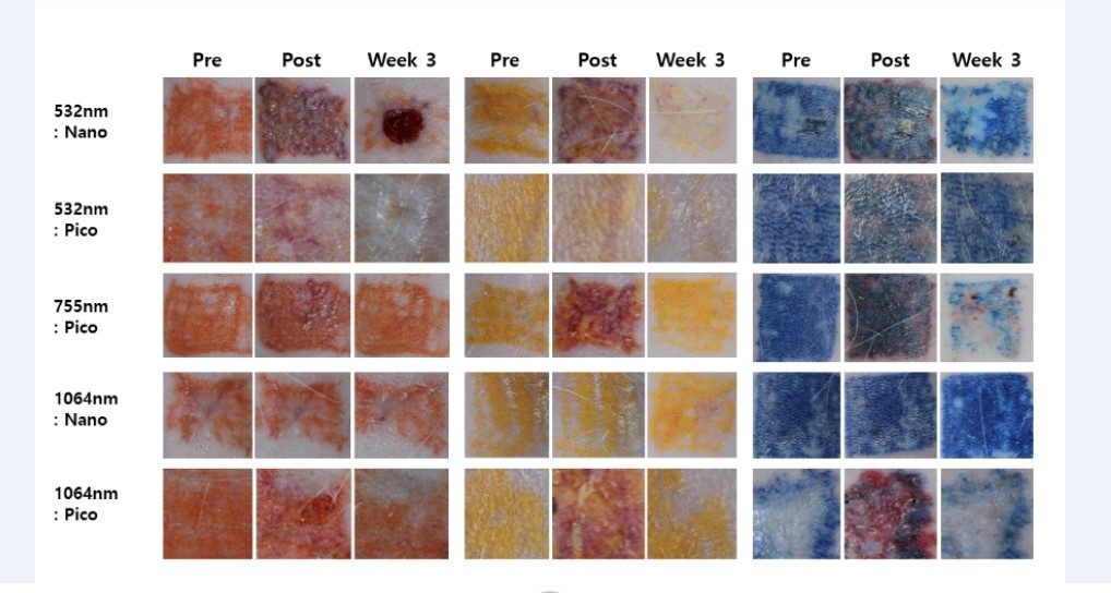 Рисунок 2. Фотографии с результатами удаления оранжевых, желтых и синих пигментов до начала лазеротерапии, сразу и спустя 3 недели после процедуры