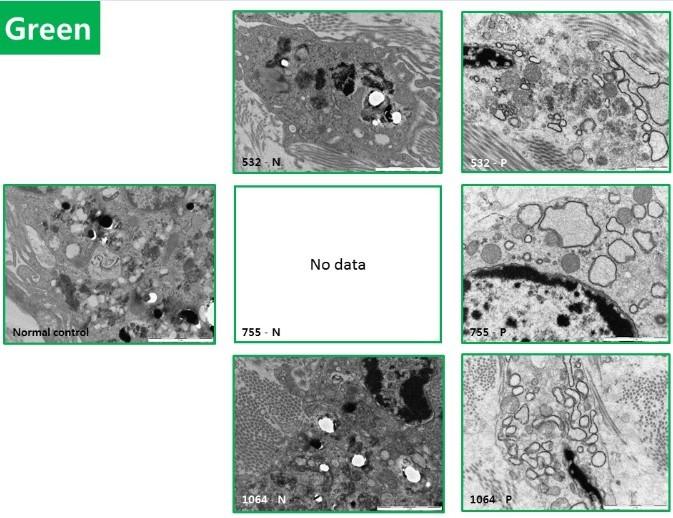 Рисунок 4. Ультраструктурный анализ черных и цветных татуировок с помощью электронной микроскопии (ЭМ)